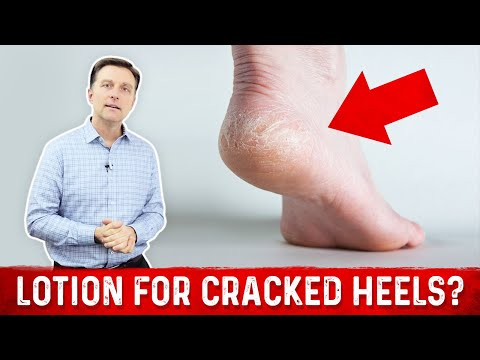 Video Why Lotion Never Fixes Dry Cracked Feet & Heels