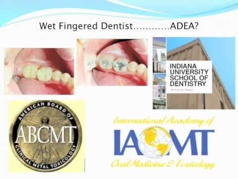 Matthew Young, DDS - Mercury safe dentist