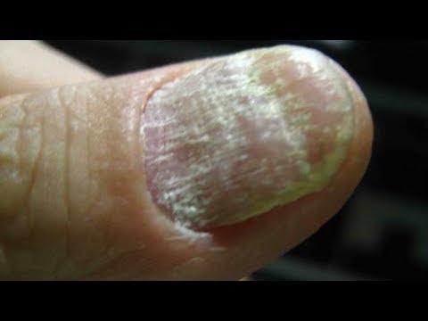 Gribok auf den Nägeln der Beine die Behandlung von den Volkseigenen