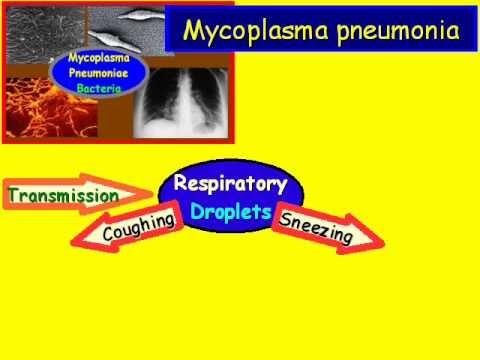 Video Mycoplasma Pneumonia Overview