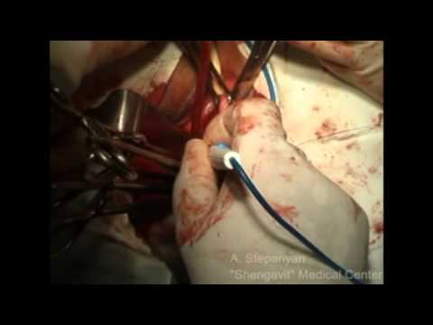 Vaginal Hysterectomy Morcellation
