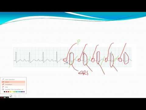 Normalan krvni tlak trudna