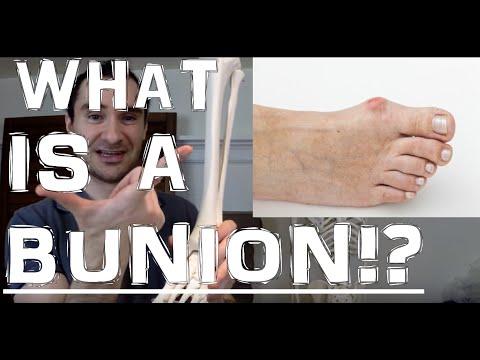 กระแทกบนนิ้วเท้า