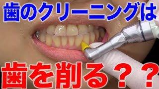 歯科医院での歯のクリーニングでは、歯を削られてしまう?