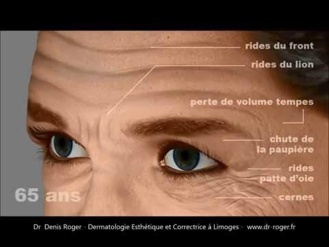 Le masque radical pour la personne