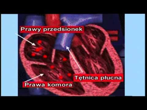 Działanie na chirurgii piersi