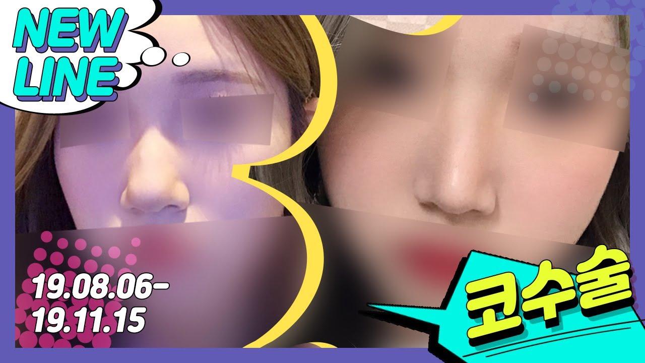 부산 뉴라인성형외과 코성형/코수술 3개월 후 비교!😎