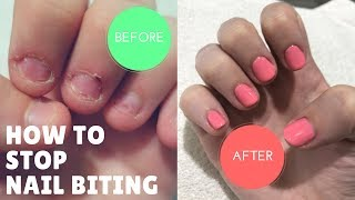 HOW I STOPPED BITING MY NAILS AFTER 20 YEARS!