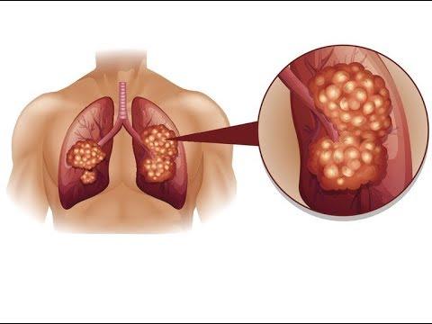 Po powiększania piersi chory