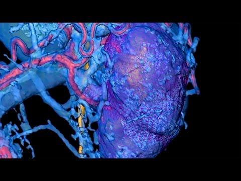 Метастазирование опухоли предстательной железы