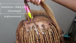 NEW TECHNIQUE  ALOPECIA + HAIR LOSS  BOX BRAIDS   @IRENESBRAIDS
