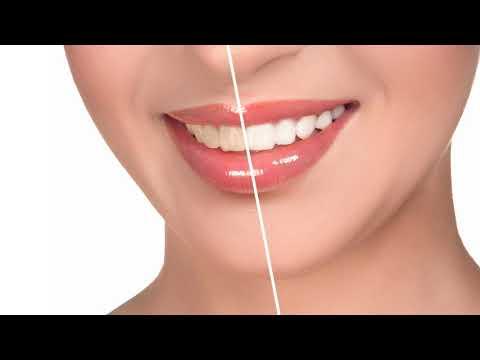 Почему зуб после удаления нерва потемнел, темнеет?