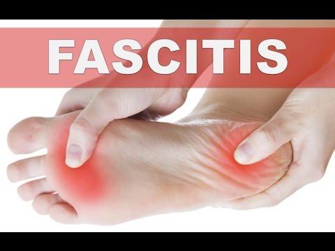 ☞Remedios caseros para la fascitis plantar o talón del basculador -Aliviar dolor en la planta de pie