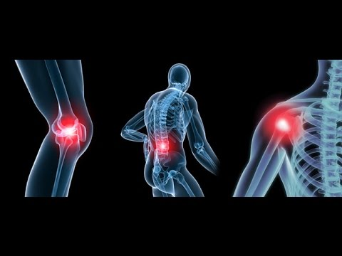 Video Education on Degenerative Joint Disease  (Osteoarthritis) -- Dr Mandell