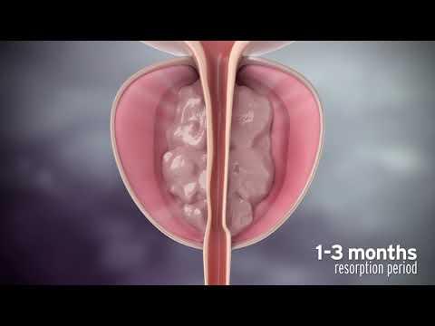 Zeitgenössische Entfernung von Prostata-Adenom