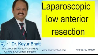 Laparoscopic LAR