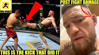 Team Conor McGregor believes this is how Conor broke his leg in fight versus Dustin Poirier, Perry
