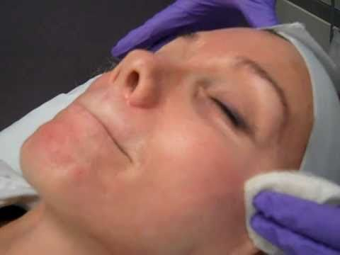 Chemical Peel – Vitalize Peel
