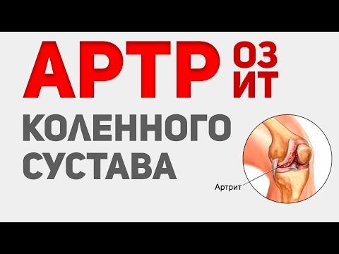 Mi gyógyítja az artrózist