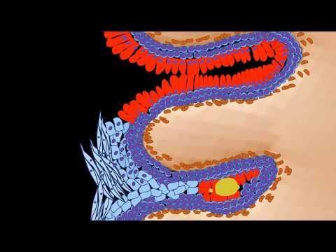 Que significa acantosis papilomatosis