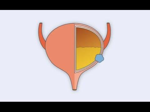 Wie Massage der Prostata