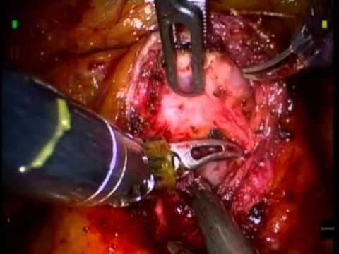 Zabezpieczenie Szyi Pęcherza Podczas Robotowej Laparoskopowej Prostatektomii Radykalnej