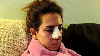 Revision Rhinoplasty Recovery: #2