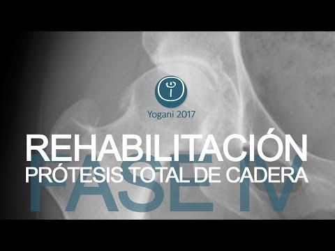 Medicamentos para el tratamiento de la osteoartritis de la rodilla