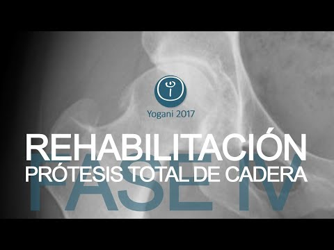 Tratamiento de fisioterapia hernia intervertebral