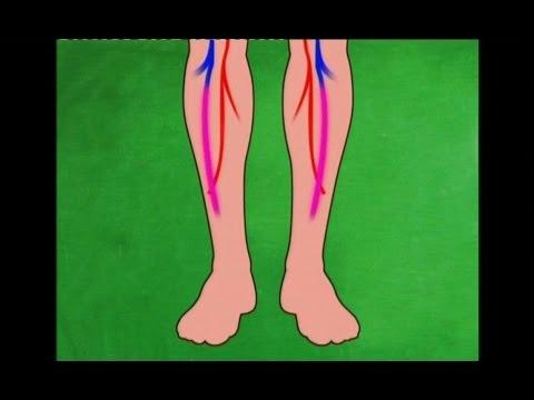 ขาชาหลังจาก sclerotherapy