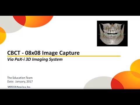 CBCT Image Capture - Detailed