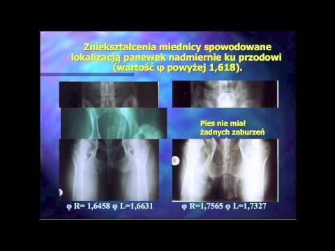 ICD deformując artroza stawu barkowego