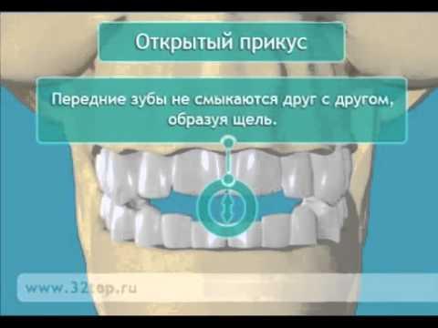 Прикус зубов. Неправильный прикус зубов