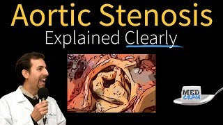 Aortic Stenosis Explained Clearly - Diagnosis and Treatment