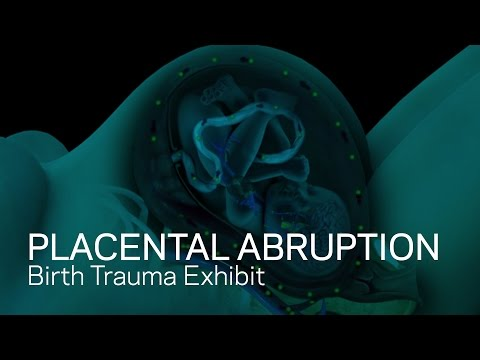 Placental Abruption - Placenta Detachment From Womb