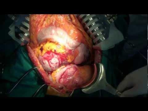 Operacja chirurgiczna wieloogniskowego mięsaka jamy brzusznej