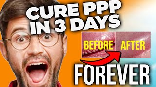 How To Get Rid Of PPP In 3 Days - Pearly Penile Papules Home Treatment.