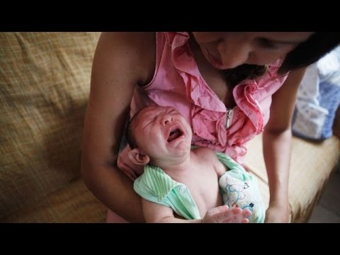 Video CDC Says the Zika Virus Does Cause Birth Defects - Newsy