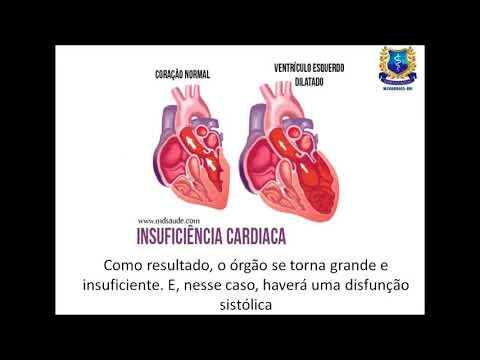 Hipertensão em CID grávida