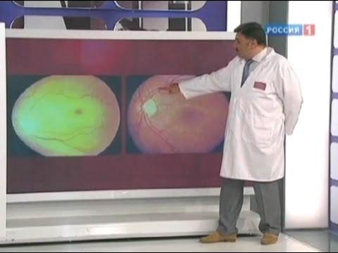 Какое зрение у простых глаз