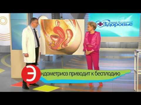 Ловушки для женщин. Болезненные менструации