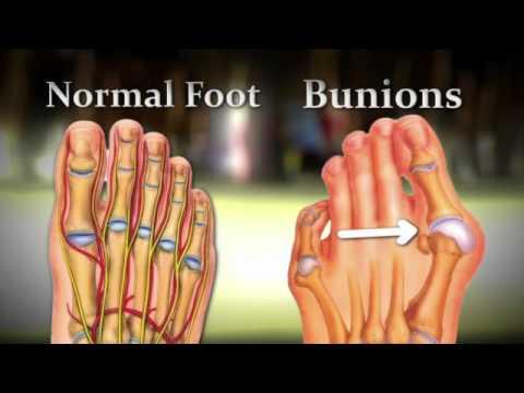 สร้างขึ้นที่ฐานของนิ้วเท้าใหญ่