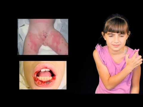 Cura di eczema tsinokap