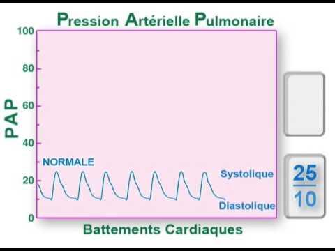Diminuer la pression partielle doxygène dans le sang artériel