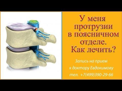 Боль в правом плечевом суставе при поднятии руки причины и лечение