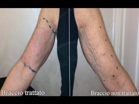 Farmaco massaggio prostatico