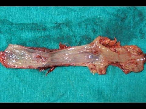 Artroza kolana iść
