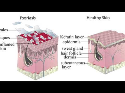 Le lapin et atopitchesky la dermatite chez les enfants