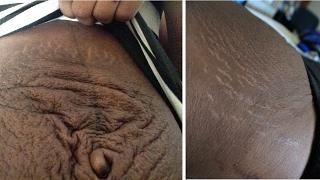 MY POSTPARTUM BODY   Journey back to a flat stomach & small waist