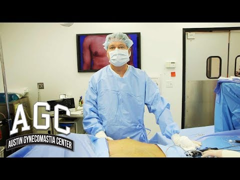 Procedure Video: Do I Have Gynecomastia And What Do I Do About It?
